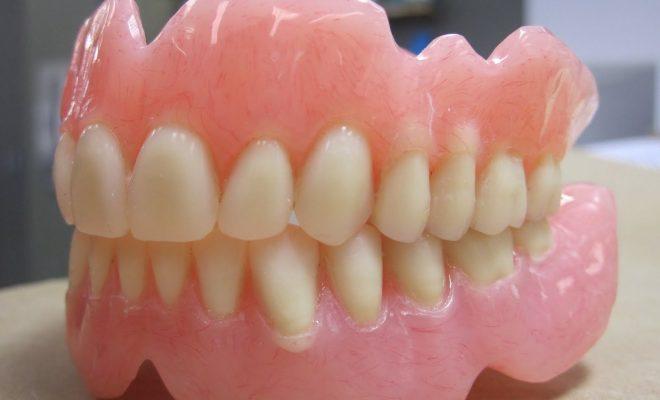 macam macam gigi palsu