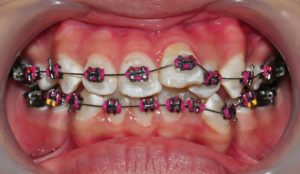 pasang kawat gigi