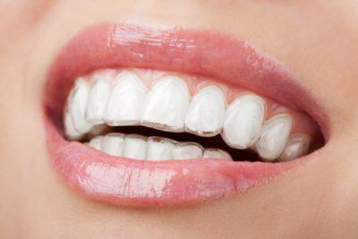 mahkota gigi